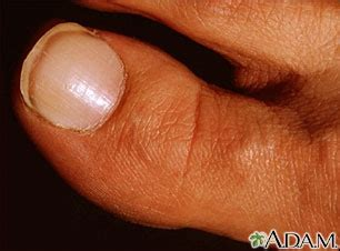 shapes of nails coughin nail abnormalities penn state hershey medical center