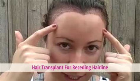 photos of women with receding hair lines hairstyles for women receding hairline