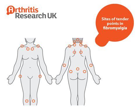 trigger points fibromyalgia diagram fibromyalgia points diagram 28 images fibromyalgia