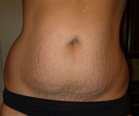 5 Months After C Section by What Our Post Baby Bellies Really Look Like Babble