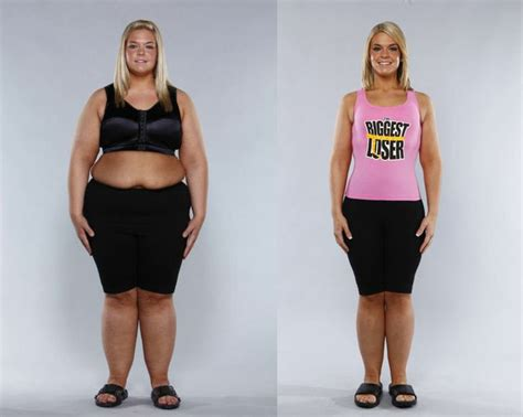 Liposuction Or Weight Loss by 59 Best Images About Lipoedema Lipedema On