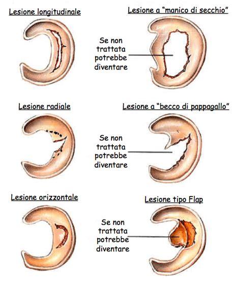 corno posteriore menisco interno le lesioni menisco ginocchio