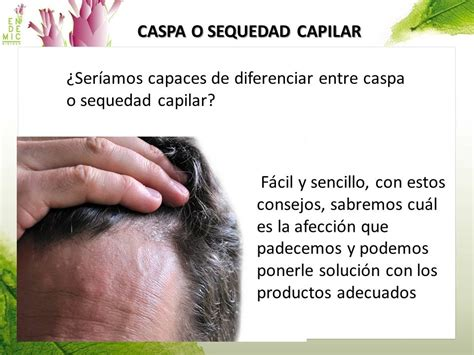 hidratar el cuero cabelludo caspa o descamaci 243 n cuero cabelludo 191 c 243 mo