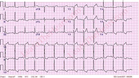 strain pattern ecg definition left ventricular hypertrophy lvh with repolarization