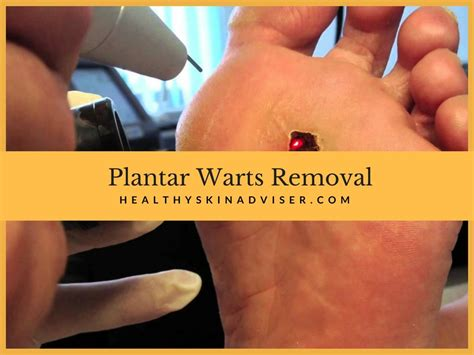 plantar wart removal stages how to get rid of warts fast
