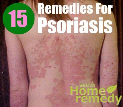 15 effective home remedies for psoriasis search home remedy