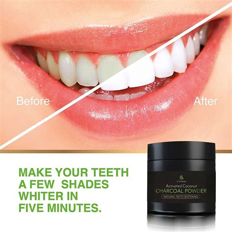 rated  teeth whitening products helpful customer
