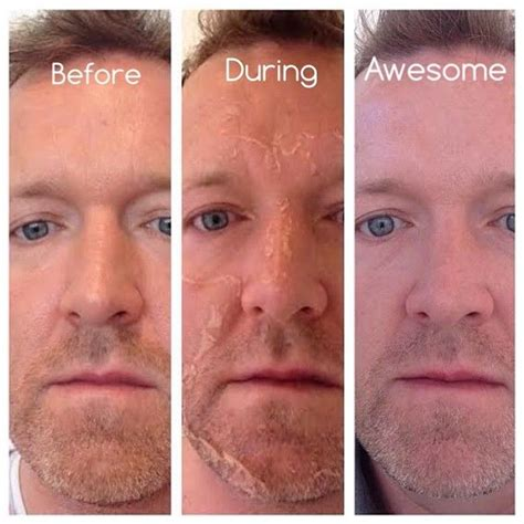 49 best images about vi peel transformations on