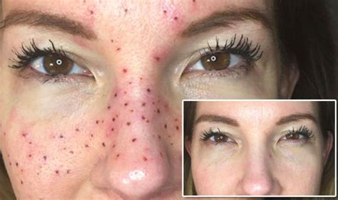 beauty mark tattoo freckles trend sees their