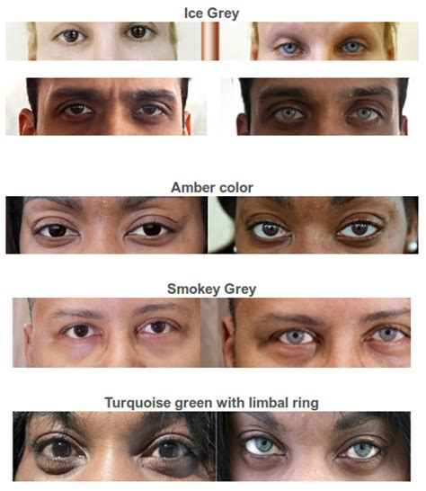 change your eye color permanently bright ocular offers a permanent eye color change
