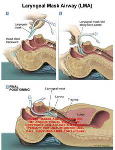 The Proseal Laryngeal Mask Airway A Review Of The Literature by Amicus Illustration Of Amicus Laryngeal Mask Airway Lma Tilted Palate Larynx