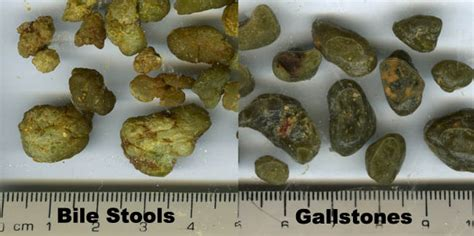 Liver Green Stool green stones at liver flush support forum topic 927150
