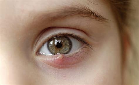 orzaiolo interno palpebra superiore le differenze tra l orzaiolo e il calazio pazienti it