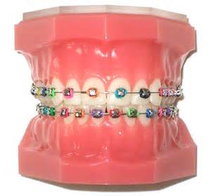 colors of braces orthodontics colored braces
