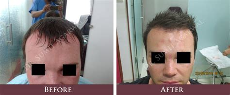 hair transplantation in mumbai reviews hair transplantation in mumbai reviews before and after