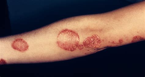 is pic psoriasis the skin what condition new psoriasis two genes clear up psoriasis and eczema confusion