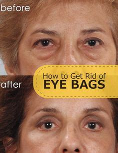 Get Rid Of That Icky Eyed Look by How To Look Awake Covering Your Eye Bags And