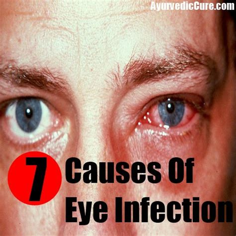 eye infection symptoms causes of eye infection reasons for eye infection usa uk herbal supplements