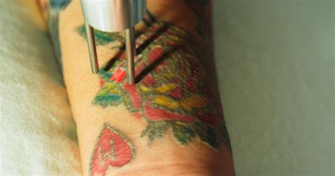 tattoo removal shreveport la advanced laser clinics of shreveport adds duality laser