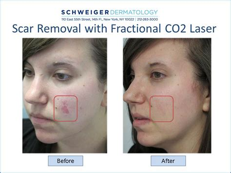 tattoo laser removal scar nyc cosmetic dermatology new york city cosmetic