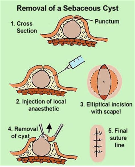 sebaceous cyst treatment sebaceous cyst epidermal cyst pictures causes treatment and removal