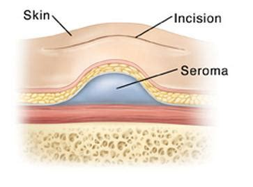seroma after c section seroma treatment formation definition pictures fluid