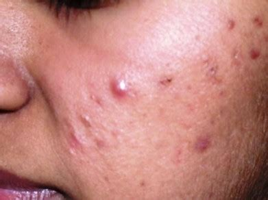 Acne Serum Zahra Skincare Pink spots from acne how to get rid naturally best