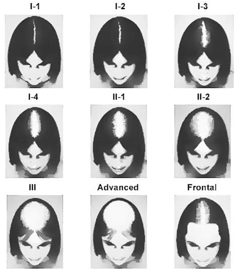 ludwig scale female androgenetic alopecia celevenus hair loss 187 female pattern hair loss fphl