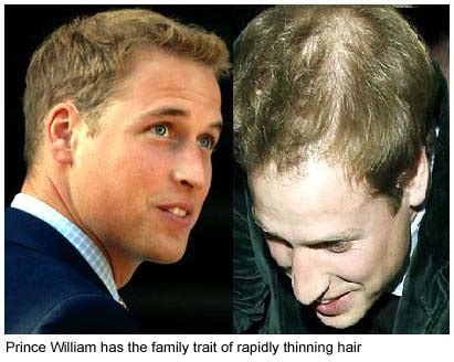 queen s hairdresser says william should have hair loss