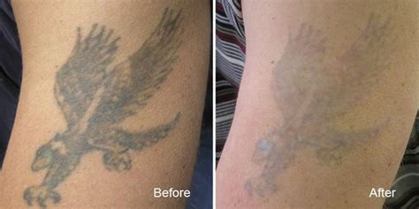 laser tattoo removal history results gallery beautiful canadian laser skin care clinic