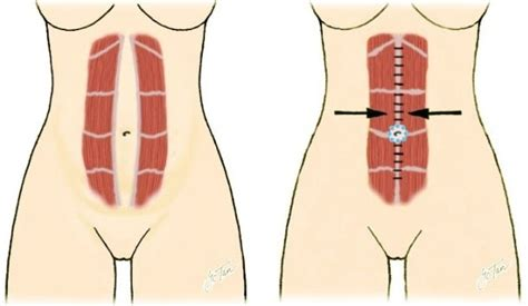 c section and abdominal muscles abdominal exercises after c section best abdominal exercises