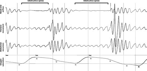 sleep pattern reversal patient powered device for the treatment of obstructive