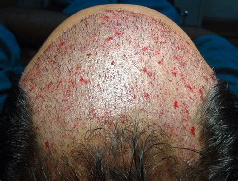photos of pubic hair lose during chemotheropy hair regrowth after chemo youtube hairstyle gallery