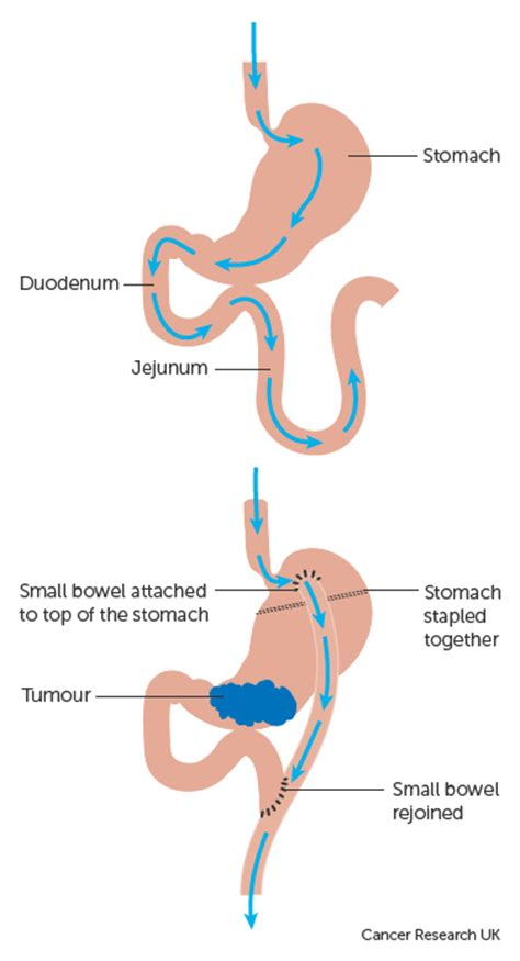 gastric bypass surgery diagram 6 best images of bypass surgery diagram gastric bypass