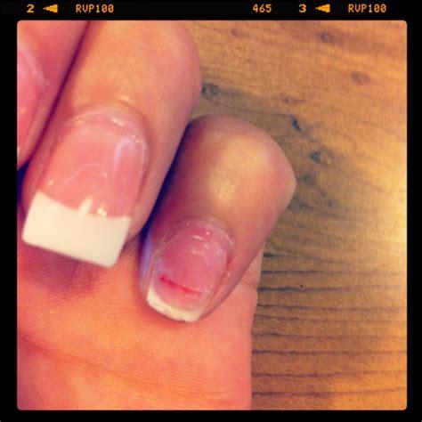 nail ripped she ripped my nail yelp