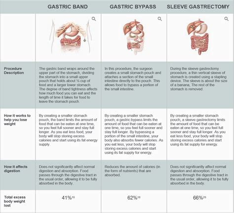 guide to types of weight loss surgery mayo clinic types of weight loss surgery comparison mloovi blog