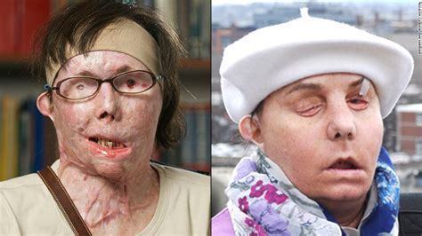 carmen tarleton now face transplant patients where are they now cnn com