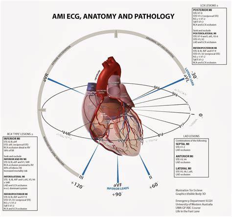 Harga Pacemaker gambar interpretasi ekg gambar pemasangan jantung di