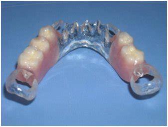 dentiera mobile costo protesi dentale mobile senza palato cura della pelle