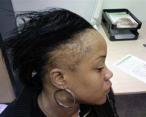 hair styles for women with balding edges how mama dukes regrew hair edges in 5 months natural