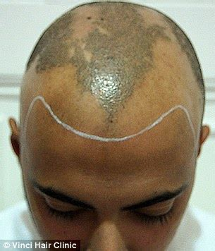 hair tattoo for bald men bald turn to hair tattoos to creates the illusion of