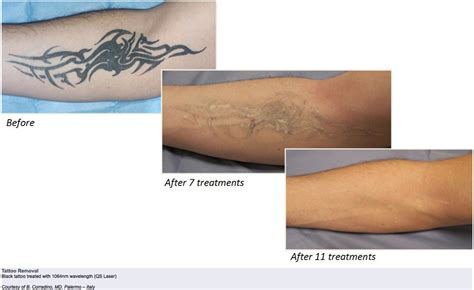 q switch laser tattoo removal before and after duolite q switched laser high tech laser