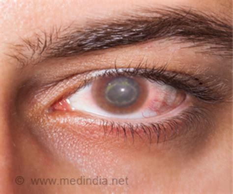 acanthamoeba keratitis symptoms signs diagnosis
