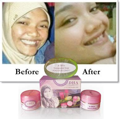 Adha White Series Berbpom Paket Ekonomis 1 my 4 out of 5 dentists recommend this site