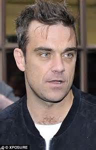 sting hair transplant robbie williams and wayne rooney hair transplants the