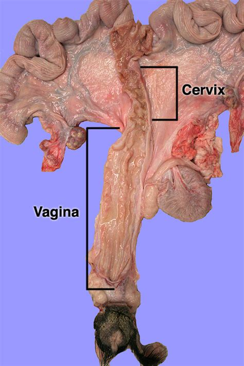 vaginia diagram and cervix