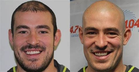hairy before and shaved photos co s head shave before and after rna canberra