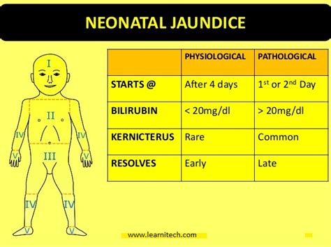 Will Doing Detox Make Bilrubin Levels Increase by How To Identity Your Baby S Jaundice And How You Can
