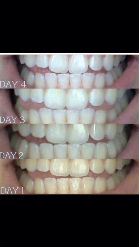 oil pulling before bed pulling before bed get whiter teeth trusper