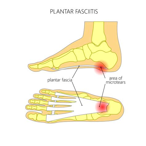 treatment for planters fasciitis treatments for plantar fasciitis whitaker wellness institute